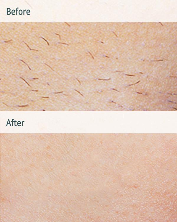 قبل و بعد از لیزر موهای زائد پاها